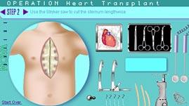 OPERATION: Heart Transplant