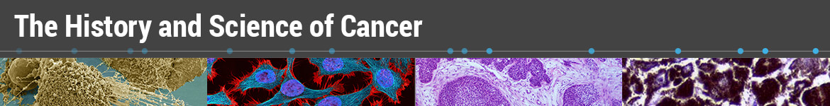 History and Science of Cancer